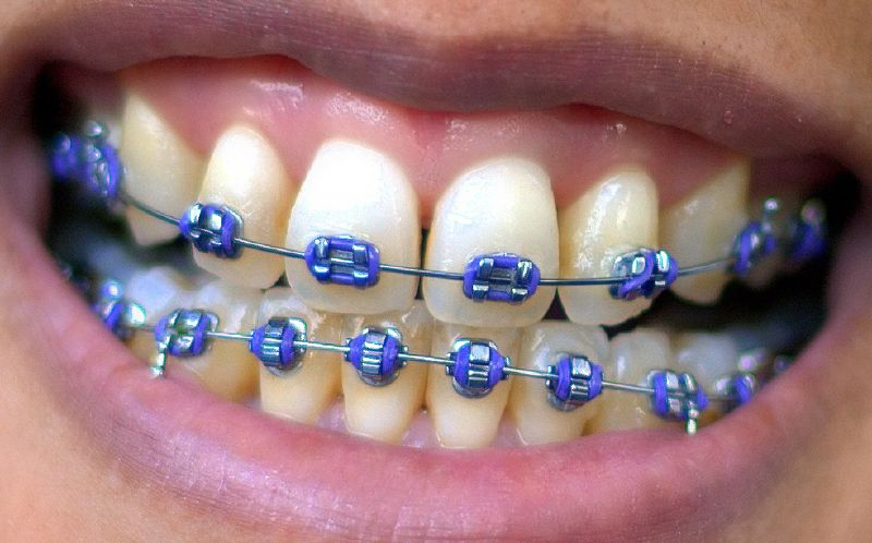 Understanding the Braces Mechanism