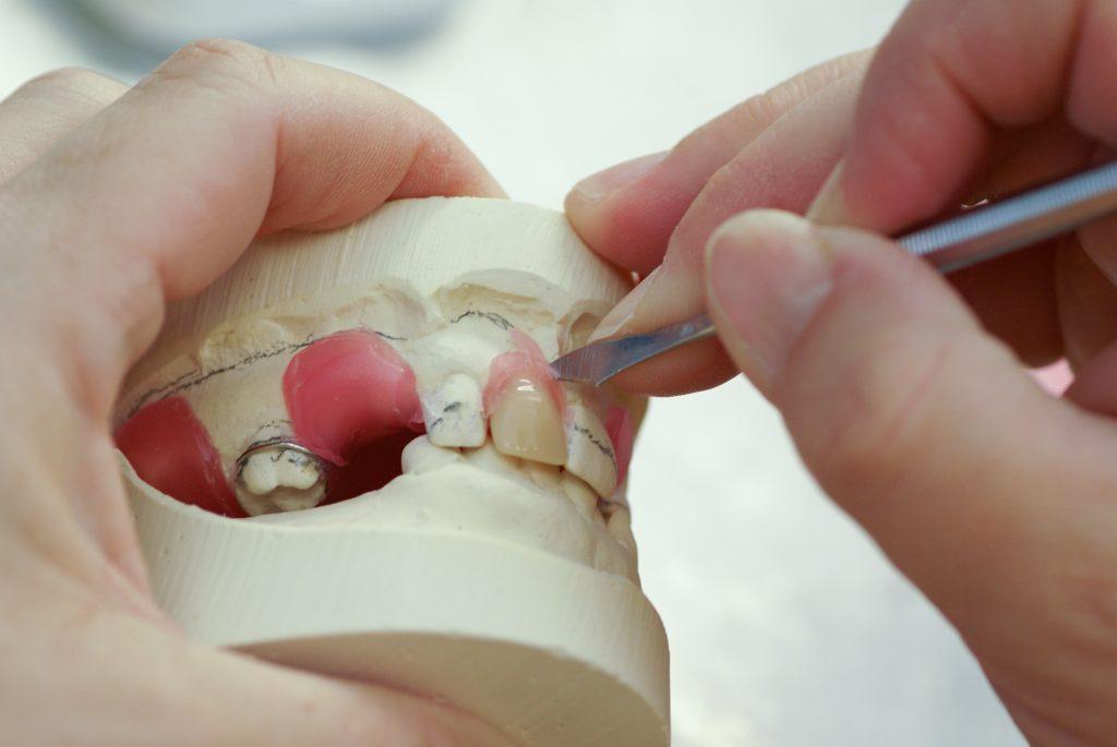 Making dentures, false teeth