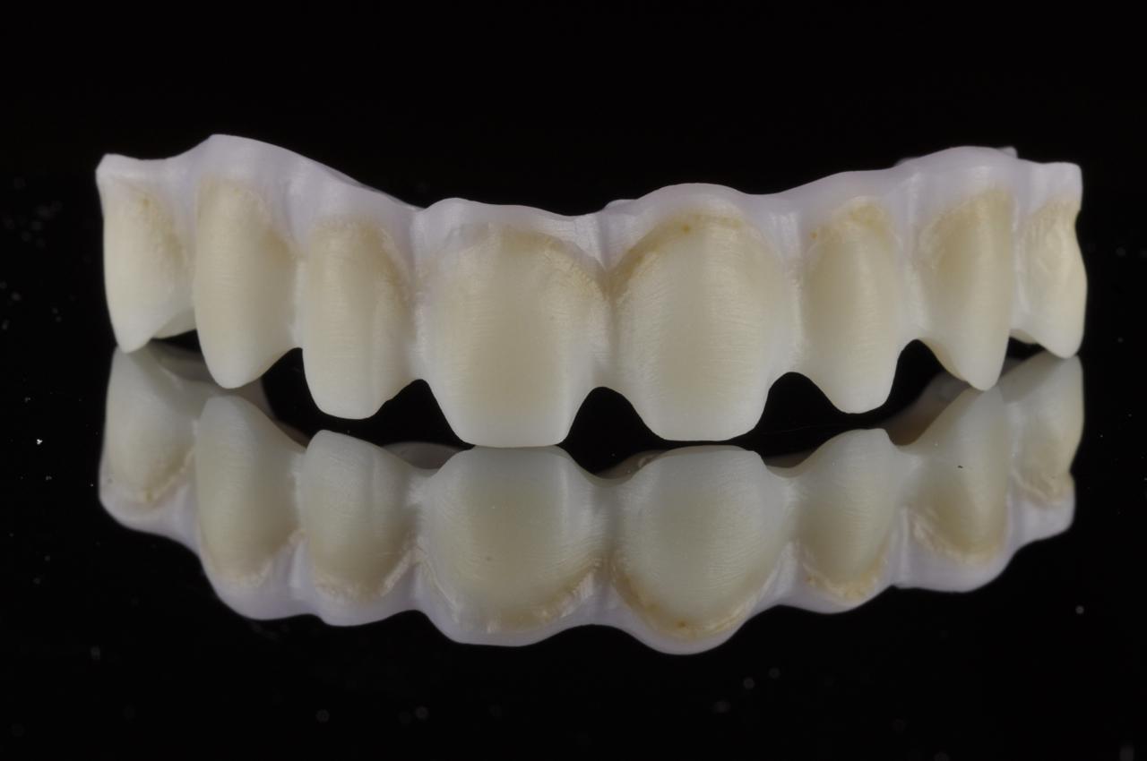 Zirconia bridge on implants