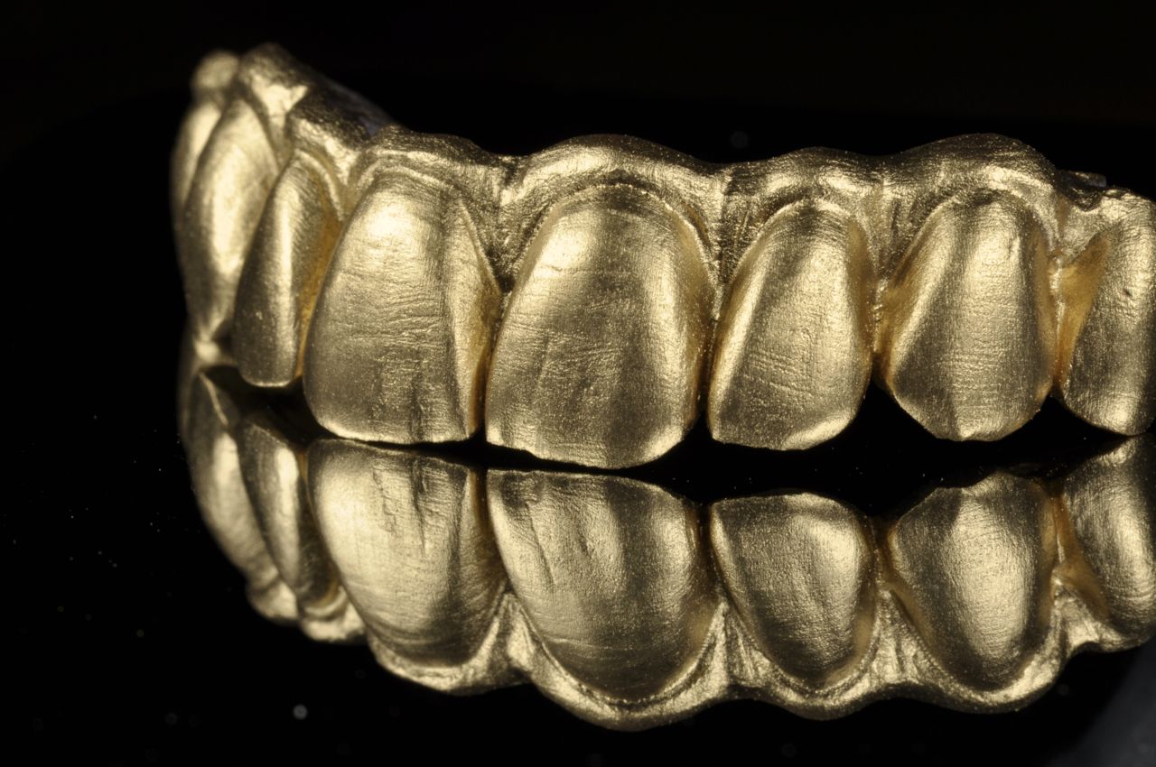 Side view of zirconia bridge with gold powder
