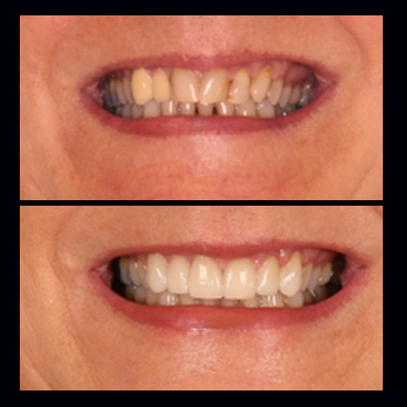 before-after-benefits-of-lithium-disilicate