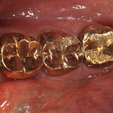 Gold Dental Crowns
