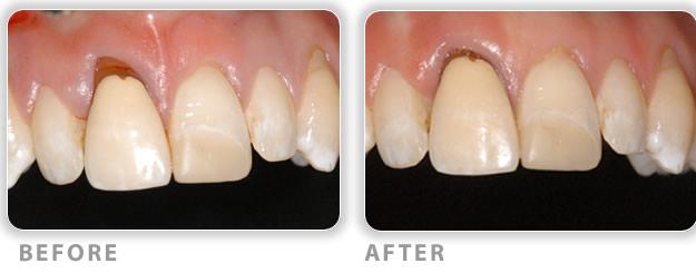 Understanding Gum Tissue Graft