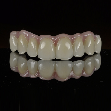 zirconia bridge on implants